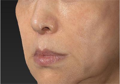 新宿ラクル美容外科クリニック 山本厚志 「人中短縮術(リップリフト)」 手術後6ヶ月目 9月14日