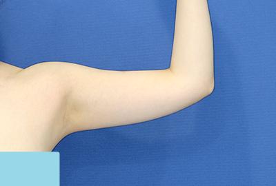 新宿ラクル美容外科クリニック 山本厚志 「ライポライフ脂肪吸引(二の腕+背中上部)」 手術前 5月1日