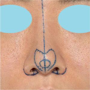 「耳介軟骨移植+鼻尖縮小(close法)+小鼻縮小+α」 新宿ラクル美容外科クリニック 20代女性 デザイン 7月17日