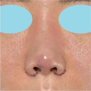 「耳介軟骨移植+鼻尖縮小(close法)+小鼻縮小+α」 新宿ラクル美容外科クリニック 20代女性 手術直後 7月17日