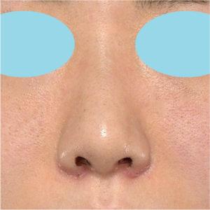 「耳介軟骨移植+鼻尖縮小(close法)+小鼻縮小+α」 新宿ラクル美容外科クリニック 20代女性 手術後1週間目 7月17日