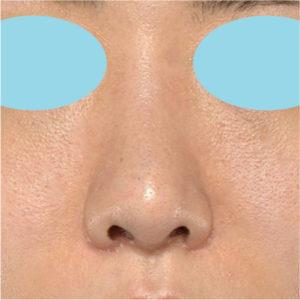 「耳介軟骨移植+鼻尖縮小(close法)+小鼻縮小+α」 新宿ラクル美容外科クリニック 20代女性 手術後3ヶ月目 7月21日