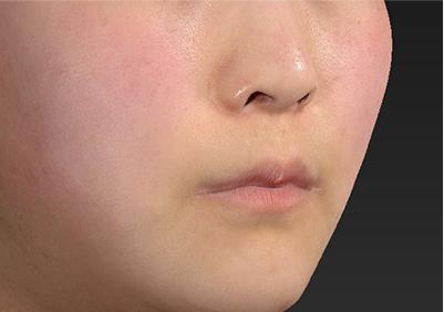 新宿ラクル美容外科クリニック 山本厚志 「人中短縮術(リップリフト)」 手術前 7月26日