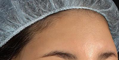 新宿ラクル美容外科クリニック 山本厚志 「額の若返り(プレミアムPRP×FGF皮膚再生療法)」 治療後1週間目 7月27日