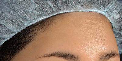 新宿ラクル美容外科クリニック 山本厚志 「額の若返り(プレミアムPRP×FGF皮膚再生療法)」 治療後1ヶ月目 7月27日