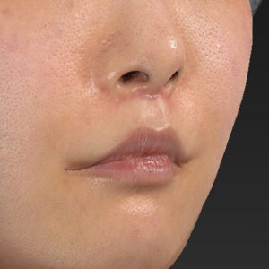 新宿ラクル美容外科クリニック 山本厚志 「口角挙上(スマイルリップ)+ 人中短縮術(リップリフト)」 手術後2ヶ月目 7月26日