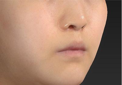 新宿ラクル美容外科クリニック 山本厚志 「人中短縮術(リップリフト)」 手術後2ヶ月目 7月26日