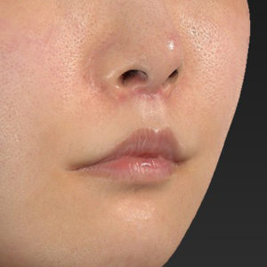 新宿ラクル美容外科クリニック 山本厚志 「口角挙上(スマイルリップ)+ 人中短縮術(リップリフト)」 手術後3ヶ月目 7月26日