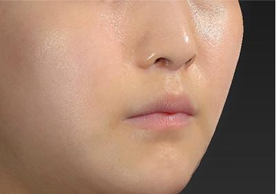 新宿ラクル美容外科クリニック 山本厚志 「人中短縮術(リップリフト)」 手術後3ヶ月目 7月26日