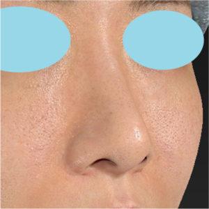 「耳介軟骨移植+鼻尖縮小(close法)+小鼻縮小+α」 新宿ラクル美容外科クリニック 20代女性 手術前 7月17日