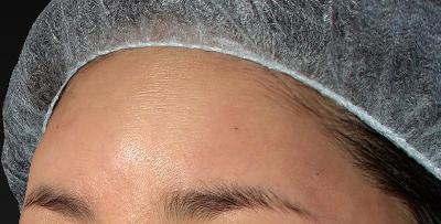 新宿ラクル美容外科クリニック 山本厚志 「額の若返り(プレミアムPRP×FGF皮膚再生療法)」 治療直後 7月27日