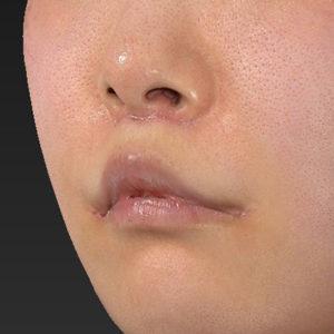 新宿ラクル美容外科クリニック 山本厚志 「口角挙上(スマイルリップ)+ 人中短縮術(リップリフト)」 手術後1週間目 7月26日