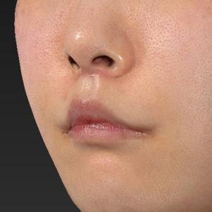 新宿ラクル美容外科クリニック 山本厚志 「口角挙上(スマイルリップ)+ 人中短縮術(リップリフト)」 手術後1ヶ月目 7月26日