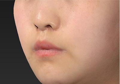 新宿ラクル美容外科クリニック 山本厚志 「人中短縮術(リップリフト)」 手術後1ヶ月目 7月26日