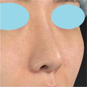 「耳介軟骨移植+鼻尖縮小(close法)+小鼻縮小+α」 新宿ラクル美容外科クリニック 20代女性 手術後2ヶ月目 7月17日