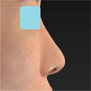 「耳介軟骨移植+鼻尖縮小(close法)+小鼻縮小+α」 新宿ラクル美容外科クリニック 20代女性 手術後1ヶ月目 7月17日