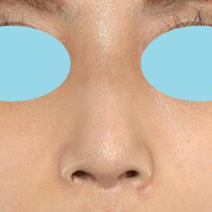 「鼻中隔延長+耳介軟骨移植+鼻尖形成+猫手術+ワシ鼻修正」 新宿ラクル美容外科クリニック 20代女性 手術前 8月27日