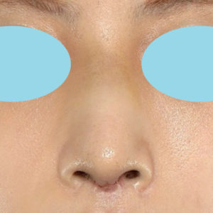 「鼻中隔延長+耳介軟骨移植+鼻尖形成+猫手術+ワシ鼻修正」 新宿ラクル美容外科クリニック 20代女性 手術後1週間目 8月27日