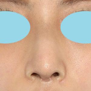 「鼻中隔延長+耳介軟骨移植+鼻尖形成+猫手術+ワシ鼻修正」 新宿ラクル美容外科クリニック 20代女性 手術後2週間目 9月10日