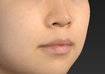 新宿ラクル美容外科クリニック 山本厚志 「人中短縮術(リップリフト)」 手術前 8月22日