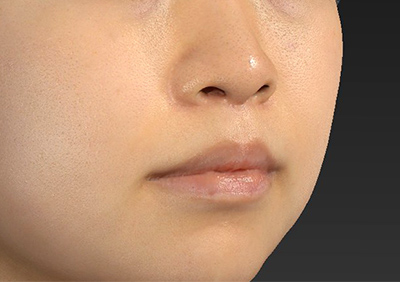 新宿ラクル美容外科クリニック 山本厚志 「人中短縮術(リップリフト)」 手術後2ヶ月目 8月22日