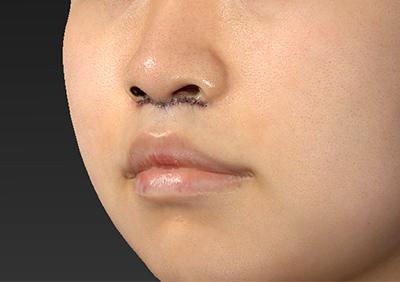 新宿ラクル美容外科クリニック 山本厚志 「人中短縮術(リップリフト)」 手術直後 8月22日