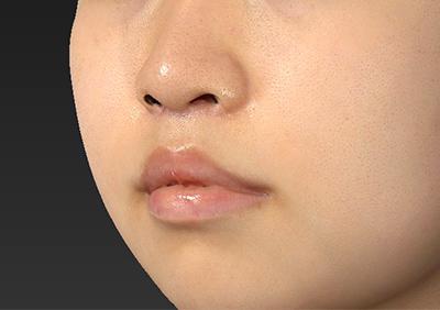 新宿ラクル美容外科クリニック 山本厚志 「人中短縮術(リップリフト)」 手術後1週間目 8月22日