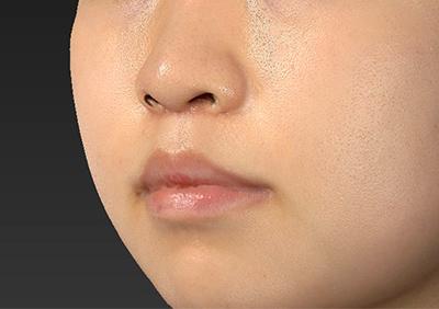 新宿ラクル美容外科クリニック 山本厚志 「人中短縮術(リップリフト)」 手術後1ヶ月目 8月22日