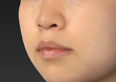 新宿ラクル美容外科クリニック 山本厚志 「人中短縮術(リップリフト)」 手術後3ヶ月目 9月17日