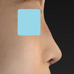 「鼻中隔延長+耳介軟骨移植+鼻尖形成+猫手術+ワシ鼻修正」 新宿ラクル美容外科クリニック 20代女性 手術直後 8月27日
