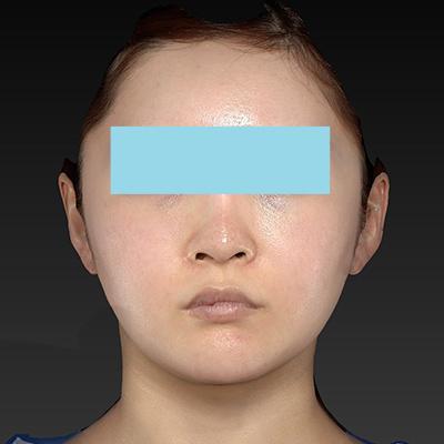 新宿ラクル美容外科クリニック 山本厚志 「ナチュラルフェイスリフト」「ライポライフ脂肪吸引(頬+あご下)」 手術前 9月4日