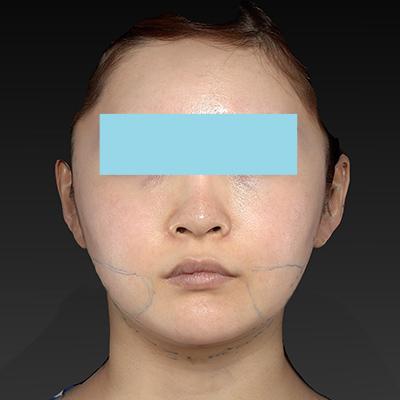 新宿ラクル美容外科クリニック 山本厚志 「ナチュラルフェイスリフト」「ライポライフ脂肪吸引(頬+あご下)」 デザイン 9月4日