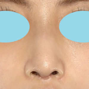 「鼻中隔延長+耳介軟骨移植+鼻尖形成+猫手術+ワシ鼻修正」 新宿ラクル美容外科クリニック 20代女性 手術後1ヶ月目 9月29日