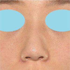 「小鼻縮小+α+鼻尖縮小(close法)+鼻プロテーゼ隆鼻術」 新宿ラクル美容外科クリニック 20代女性 手術後1ヶ月目 9月14日