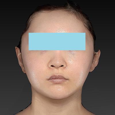 新宿ラクル美容外科クリニック 山本厚志 「ナチュラルフェイスリフト」「ライポライフ脂肪吸引(頬+あご下)」 手術後1ヶ月目 9月4日