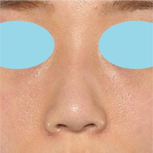 「小鼻縮小+α+鼻尖縮小(close法)+鼻プロテーゼ隆鼻術」 新宿ラクル美容外科クリニック 20代女性 手術後2ヶ月目 10月13日