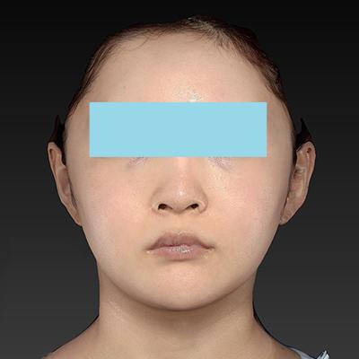 新宿ラクル美容外科クリニック 山本厚志 「ナチュラルフェイスリフト」「ライポライフ脂肪吸引(頬+あご下)」 手術後3ヶ月目 9月21日