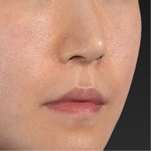 新宿ラクル美容外科クリニック 山本厚志 「口角挙上(スマイルリップ)+ 人中短縮術(リップリフト)」 手術前 9月20日