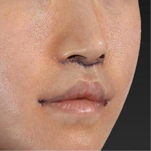 新宿ラクル美容外科クリニック 山本厚志 「口角挙上(スマイルリップ)+ 人中短縮術(リップリフト)」 手術直後 9月20日