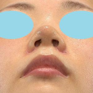 「耳介軟骨移植+鼻尖縮小(close法)+小鼻縮小+α」 新宿ラクル美容外科クリニック 30代女性 手術後1週間目 9月19日