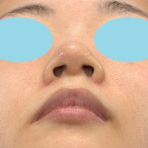 「耳介軟骨移植+鼻尖縮小(close法)+小鼻縮小+α」 新宿ラクル美容外科クリニック 30代女性 手術後3ヶ月目 9月19日