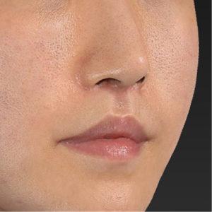 新宿ラクル美容外科クリニック 山本厚志 「口角挙上(スマイルリップ)+ 人中短縮術(リップリフト)」 手術後3ヶ月目 9月20日