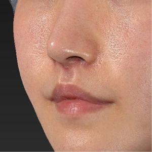 新宿ラクル美容外科クリニック 山本厚志 「口角挙上(スマイルリップ)+ 人中短縮術(リップリフト)」 手術後1ヶ月目 9月20日