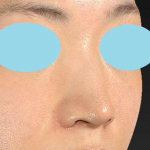 「耳介軟骨移植+鼻尖縮小(close法)+小鼻縮小+α」 新宿ラクル美容外科クリニック 30代女性 手術後2ヶ月目 9月19日