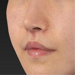 新宿ラクル美容外科クリニック 山本厚志 「口角挙上(スマイルリップ)+ 人中短縮術(リップリフト)」 手術後2ヶ月目 9月20日