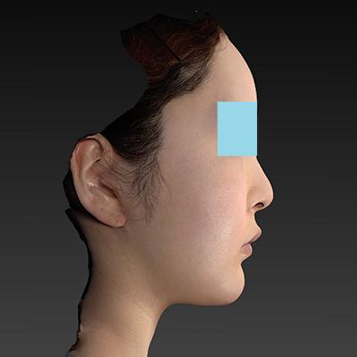 新宿ラクル美容外科クリニック 山本厚志 「ナチュラルフェイスリフト」「ライポライフ脂肪吸引(頬+あご下)」 手術後2ヶ月目 9月4日