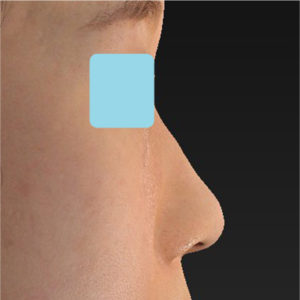 「小鼻縮小+α+鼻尖縮小(close法)+鼻プロテーゼ隆鼻術」 新宿ラクル美容外科クリニック 20代女性 手術前 9月14日