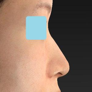 「耳介軟骨移植+鼻尖縮小(close法)+小鼻縮小+α」 新宿ラクル美容外科クリニック 30代女性 手術前 9月19日