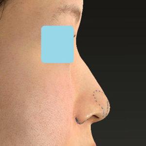「耳介軟骨移植+鼻尖縮小(close法)+小鼻縮小+α」 新宿ラクル美容外科クリニック 30代女性 デザイン 9月19日