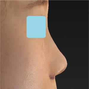 「小鼻縮小+α+鼻尖縮小(close法)+鼻プロテーゼ隆鼻術」 新宿ラクル美容外科クリニック 20代女性 手術直後 9月14日